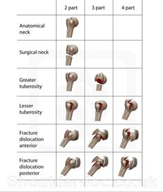Proximal Humerus Fracture Classifications | ShoulderDoc