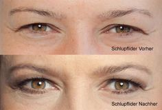 Schlupflider schminken - Vorher-Nachher Vergleich