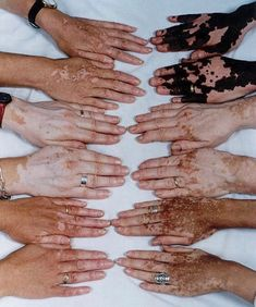 Vitiligo - I find this skin condition very beautiful and unique Pretty People, Beautiful People, Vitiligo Treatment, Foto Art, Belleza Natural, Character Inspiration, Im Not Perfect, At Least, Photos