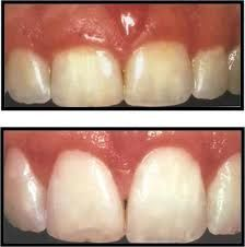 Laser gum contouring is a treatment in which gummy smile or gum overgrowth can be correct through gums remove surgery. Dental Solutions, Bangalore have expert cosmetic dentists for smile correction or gum removal procedure at low cost in India.