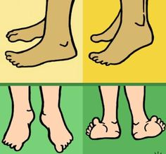 <u>How Can I Prevent And Manage Bunions?</u><br>Bunion Tip Exercise Your Feet Health And Wellbeing, Health And Nutrition, Health Tips, Health Fitness, Health Remedies, Home Remedies, Natural Remedies, Workout Gear, No Equipment Workout