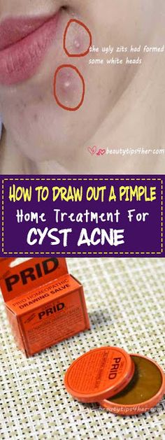 How to Draw Out a Pimple – 4 Home Remedies for Cysts Acne – Home Treatment for Under the Skin Pimples