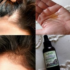 I have been fighting with alopecia for almost 3 years now and am only 27 years… Belleza Diy, Tips Belleza, Natural Hair Care, Natural Hair Styles, Hair Loss Remedies, Hair Loss Treatment, Hair Treatments, Belleza Natural, Hair Health