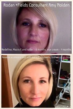 These results are life changing! So amazing! Message me!