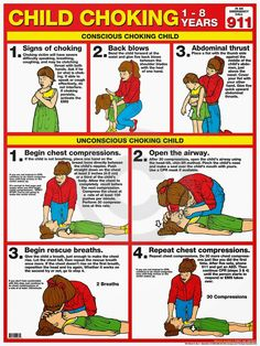 CHILD CHOKING First Aid Wall Chart Poster - 2013 Red Cross Guidelines - School, Day Care, Sports Fa seasonal symptoms health health natural remedies aid Choking First Aid, First Aid Cpr, First Aid Poster, Basic First Aid, Emergency First Aid, American Red Cross, Kids Health, Children Health, Baby Health