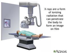 X Ray In Bangalore  Medical Testing In India    X Rays