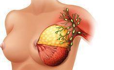 Lymphknoten-Entfernung bei Brustkrebs - hilfreich oder sinnlos?