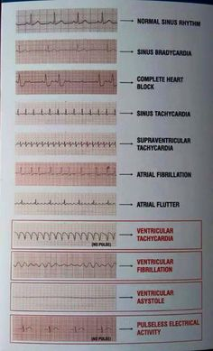Tele-Strip-EKG-Messwerte Tele-Strip ECG readings How to cleanse your whole body in a natural way Continue reading Waters For Clear Skin – Health – # forHere you can find our effective diet plan for de Cardiac Nursing, Nursing Mnemonics, Rn School, Medical School, Pharmacy School, Critical Care Nursing, Nursing School Notes, Nursing Schools, Respiratory Therapy