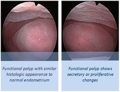 Endometrial polyps are areas of growth of endometrial tissue inside the uterine cavity. They are composed of stroma, glands and blood vessels coated by endometrial lining. Polyps are the most common endometrial pathology found on diagnostic hysteroscopy and represent a frequent cause of operative hysteroscopy. They are usually benign in nature, although, when symptomatic, about 20% have small areas of hiperplasia being between 0.5% and 1% malignant.