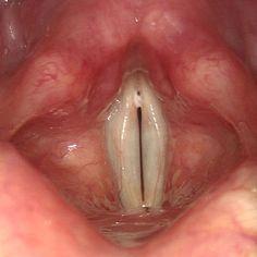 Throat Spasms 22