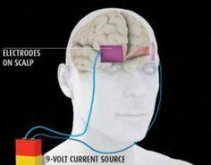 Schokken dmv elektrodes stimuleren bepaalde vaardigheden en acties.