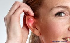 Ear Piercing Infection: Causes, Treatment, Home Remedies, Preventive Measures #EarPiercingInfection #earache #earpain #earcaretips #epainassist Read: http://www.epainassist.com/earache-or-ear-pain/ear-piercing-infection-causes-treatment-home-remedies-preventive-measures