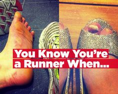 The 10 most repulsive runner's feet EVER.