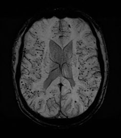 Cerebral amyloid angiopathy (CAA) is a cerebrovascular disorder that tends to manifest in normotensive elderly patients. It is common and most often presents clinically as an intracerebral haemorrhage. It is usually not associated with systemic amyloidosis.  http://radiopaedia.org/articles/cerebral-amyloid-angiopathy-1
