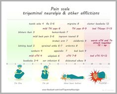 Pain Scale Including Trigeminal Neuralgia. Most pain scales end at 10. Unfortunately, TN doesn't