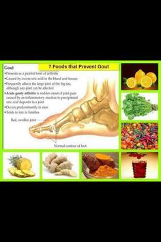 if uric acid accumulates in joints of humans the condition is referred to as how to lower uric acid to get rid of gout how do i treat gout at home