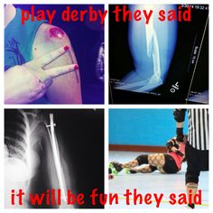 Roller Derby is the bees knees