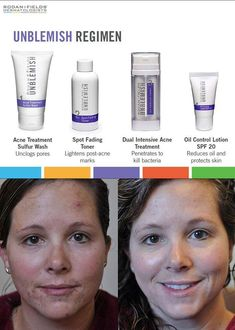 Have acne or cystic acne? Then R+F Unblemish is what you need.  Become a PC perks customer and secure your AMP MD for when it gets released in October.  The roller will diminish  those deep acne scars. Www.alutz.myrandf.com