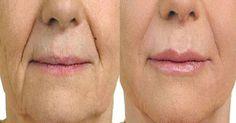 Οι βαθιές γραμμές γύρω από το στόμα, γίνονται πιο ορατές καθώς γερνάμε. Αυτό συμβαίνει γιατί, οι σύνδεσμοι γύρω από το στόμα και το πηγούνι χαλαρώνουν, επι