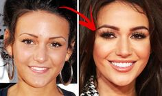 Michelle Keegan plastic surgery before and after