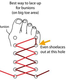 Tip: Best Way to Lace Up Shoes to Ease on Bunions Here's a great way to ease the pressure from your bunion. In this image below you can see that for your right shoe, you should skip the top left lace hole in order to ease the pressure on a bunion that you Bunion Remedies, Gout Remedies, Sleep Remedies, Natural Remedies, Insomnia Remedies, Best Shoes For Bunions, Bunion Surgery, K Tape, Bunion Relief