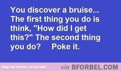 The Sequence Of Discovering A Bruise…literally my life. I always have bruises.