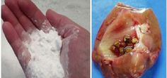 How to Repair Your Kidneys Naturally Using Baking Soda