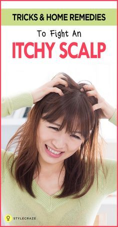 Natural Remedy For Itchy Scalp When Sweating