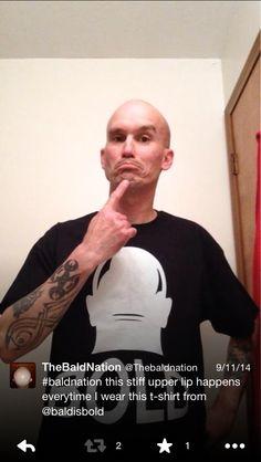 #baldnation