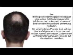 Haarausfall In Den Wechseljahren - Mesotherapie Haarausfall http://haarausfall-heilung.info-pro.co/ Der hormonell-erblich bedingte Haarausfall lässt sich schon oft am Muster der Ausdünnung beziehungsweise Glatzenbildung eindeutig diagnostizieren. Der kreisrunde Haarausfall ist oft aufgrund der charakteristischen Anzeichen (zum Beispiel Ausrufungszeichenhaare) erkennen zu. Beim diffusen Haarausfall sieht der sich die Arzt Kopfhaut genauer una.  Eine Blutuntersuchung gibt Hinweise