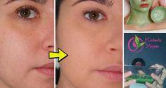 Bu maskeyle üç gecede mükemmel ve kusursuz bir cilde kavuştu. Kesinlikle beğeneceksiniz…! Vücut güzelleğinde yüz bakımı en önemli bakımlardan biridir. Vücudun diğer bölgeleri rahatlıkla gizlenebilirken yüzümüz her zaman açıkta kalır. İşte bu nedenle parlak ve güzel bir cilt çok önemlidir. Bununla birlikte hepimiz yüzümüzde dermatolojik sorunlarla karşılaşmadan bi ergenlik geçirmemişizdir. Hormonal değişimlerle normal olduğu gibi, …