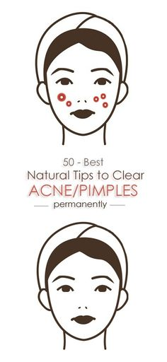 50 Home Remedies For Acne And Pimples.