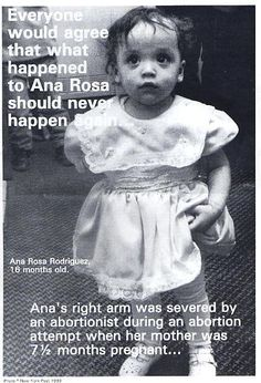 Remembering When an Abortionist Severed the Arm of a Baby Who Survived a 32-Week Abortion http://www.lifenews.com/2014/03/05/remembering-when-an-abortionist-severed-the-arm-of-a-baby-who-survived-a-32-week-abortion/