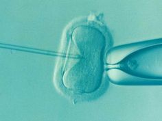 オランダ IVF(体外受精)の年齢制限を50歳に引き上げ