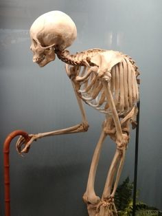 ******HYPER-KYPHOSIS**********maybe even Ankylosing Spondylitis‎!?!?!?                 -no thank you  Museum of Osteology, Oklahoma City, OK, via Violent Acts of Beauty