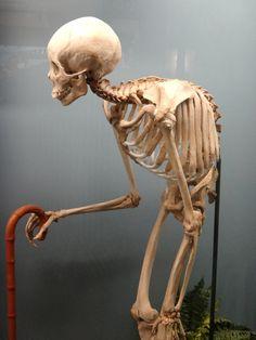 ******HYPER-KYPHOSIS**********maybe even Ankylosing Spondylitis!?!?!?                 -no thank you  Museum of Osteology, Oklahoma City, OK, via Violent Acts of Beauty