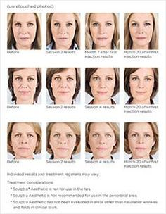 50 best facial fillers images on pinterest facial fillers dermal sculptra promoting your bodys own collagen see the results for yourself solutioingenieria Gallery