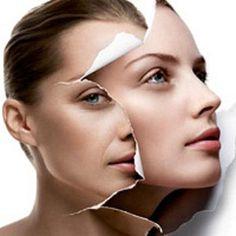 Các công nghệ trị nám da mặt hiệu quả