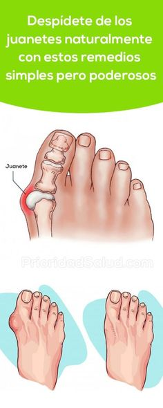 A Simple But Powerful Natural Remedy To Get Rid Of Bunions - naturall diet team Herbal Remedies, Home Remedies, Natural Remedies, Get Rid Of Bunions, Cool Eyes, Healthy Tips, Good To Know, Natural Health, Body Care