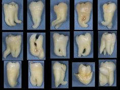 An array of molars displaying differences in the shape/siz of the roots