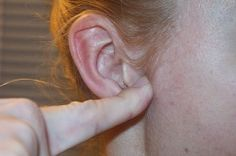 Acupuncture Weight Loss Most Important Accupressure Ear Point to lose Weight - Suffering with over weight? then check out these 6 most important acupressure points to lose weight. These pressure points will help you reduce fat fast. Alternative Health, Alternative Medicine, Acupuncture For Weight Loss, Acupressure Points, Acupuncture Points, Good Massage, Lose Weight Naturally, Loose Weight, Body Weight