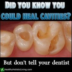 Did you know that you could actually heal cavities? But don't tell your dentist