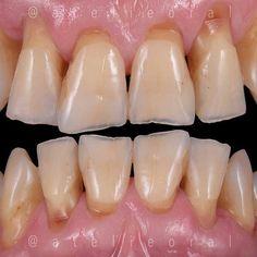 @Regrann from @cabralstrosi -  Quando o paciente apresenta um desequilíbrio oclusal, algumas estruturas são afetadas de forma isolada ou conjunta! Neste caso, os dentes e o periodonto sofreram grandes modificações devido a desarmonia oclusal! A estética é importante, mas devemos olhar com os mesmos olhos para a função!!! Seja responsável pelo seu paciente! #atelieoral #lab_precision #muitoalemdosdentes #fotografiaodontologica #odontologiaestetica