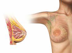 Contraceção hormonal e o risco de cancro da mama Breast Image, Swollen Lymph Nodes, Nursing Assessment, Side Effects, Breast Cancer, Women, Cutaway, Free Images, Vectors