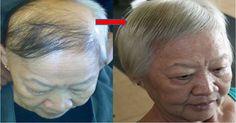 Este suero es como una poción mágica, que ayuda a estimular el crecimiento del cabello muy rápido.