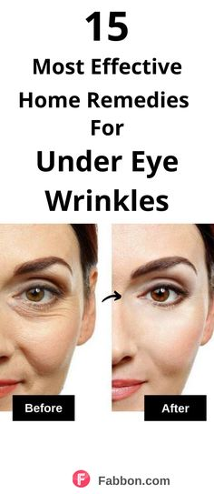 Under Eye Wrinkle Treatment, Home Remedies For Wrinkles, Eye Treatment, Natural Wrinkle Remedies, Skin Care Remedies, Under Eye Wrinkles, Face Wrinkles, Under Eye Makeup, Home