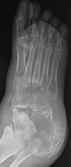 A Charcot joint (also known as a neurotrophic joint) refers to a progressive degenerative / destructive joint disorder in patients with abnormal pain sensation and proprioception.  Mnemonic - 6 Ds  dense bones (subchondral sclerosis) degeneration  destruction of articular cartilage deformity (pencil-point deformity of metatarsal heads) debris (loose bodies) dislocation  http://radiopaedia.org/articles/charcot-joint