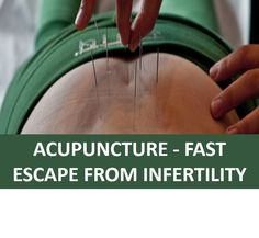 Acupuncture - Fast Escape From Infertility
