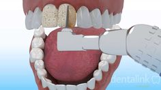 #Carilla #estética anterior - Dentalink Software, Video 3D