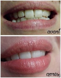 Top Oral Health Advice To Keep Your Teeth Healthy. The smile on your face is what people first notice about you, so caring for your teeth is very important. Unluckily, picking the best dental care tips migh Beauty Care, Diy Beauty, Beauty Skin, Beauty Hacks, Health And Beauty, Whitening Skin Care, Best Teeth Whitening, How To Close Pores, Skin Tag Removal